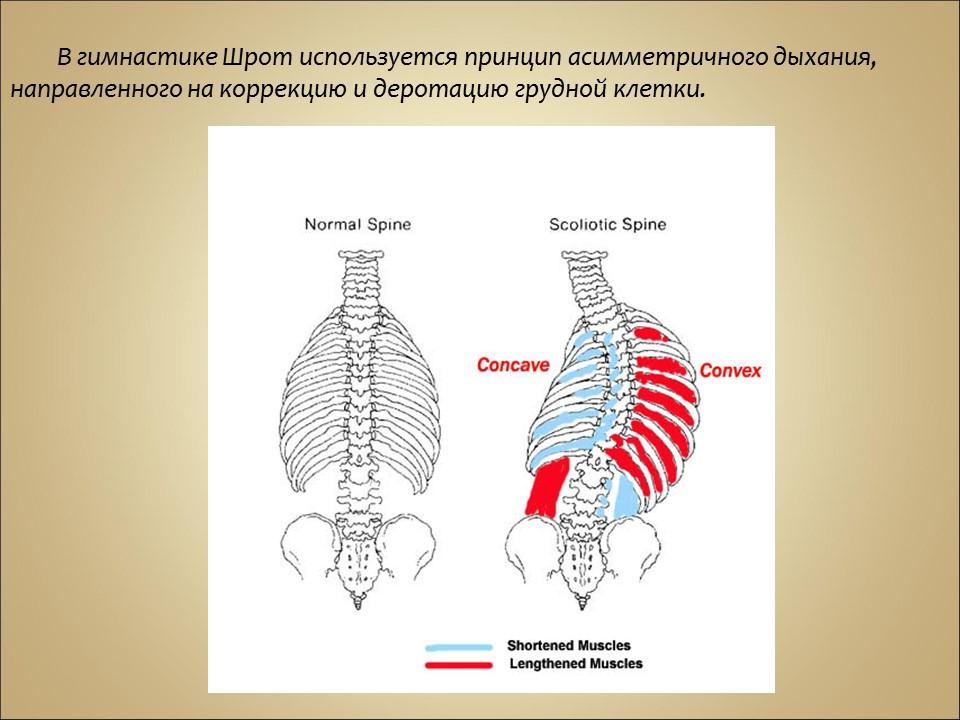 Упражнения при сколиозе позвоночника у ребенка